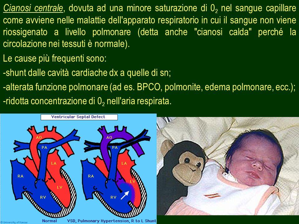 Cianosi centrale, dovuta ad una minore saturazione di 02 nel sangue capillare come avviene nelle malattie dell apparato respiratorio in cui il sangue non viene riossigenato a livello polmonare (detta anche cianosi calda perché la circolazione nei tessuti è normale).