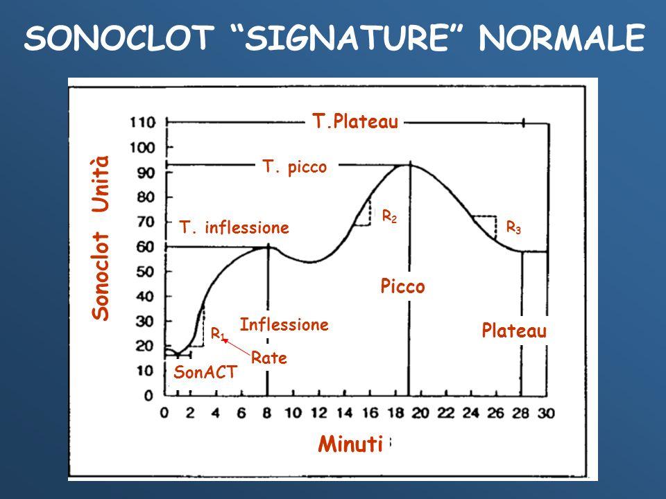 SONOCLOT SIGNATURE NORMALE