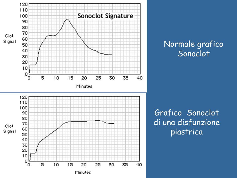 Normale grafico Sonoclot