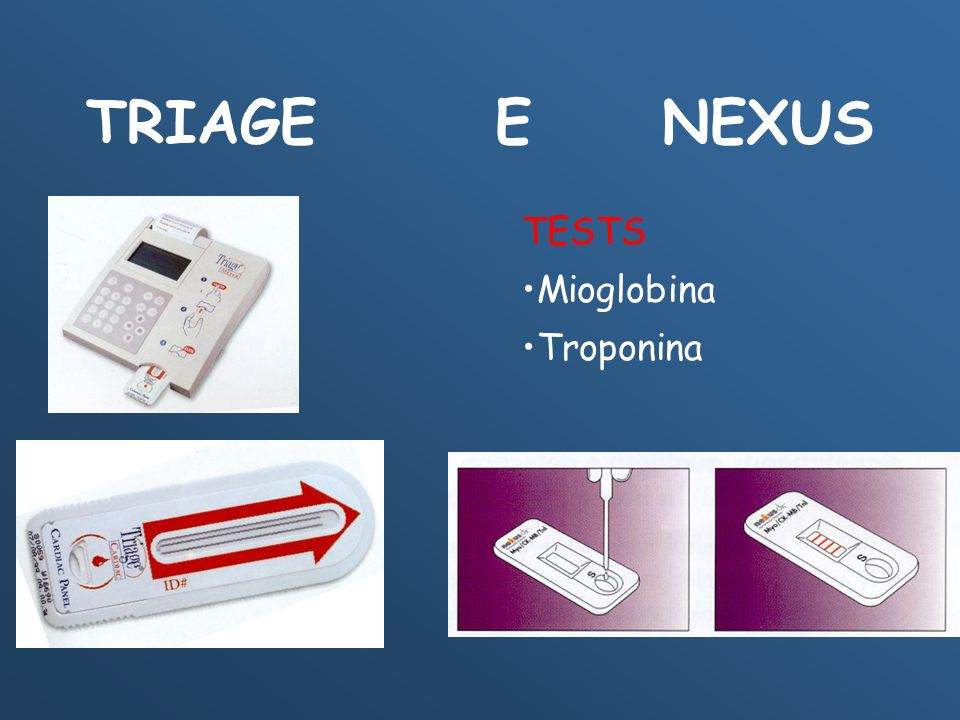 TRIAGE E NEXUS TESTS Mioglobina Troponina
