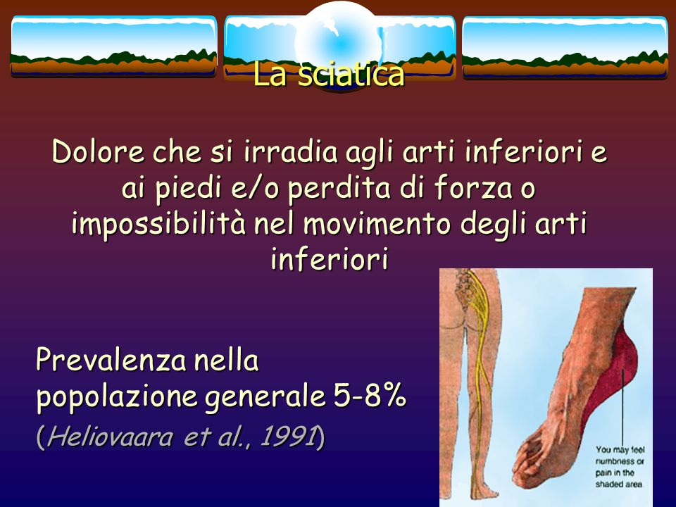 La sciatica Dolore che si irradia agli arti inferiori e ai piedi e/o perdita di forza o impossibilità nel movimento degli arti inferiori.