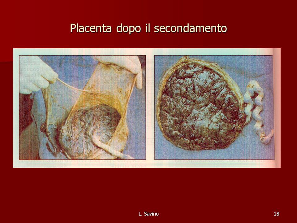 Placenta dopo il secondamento