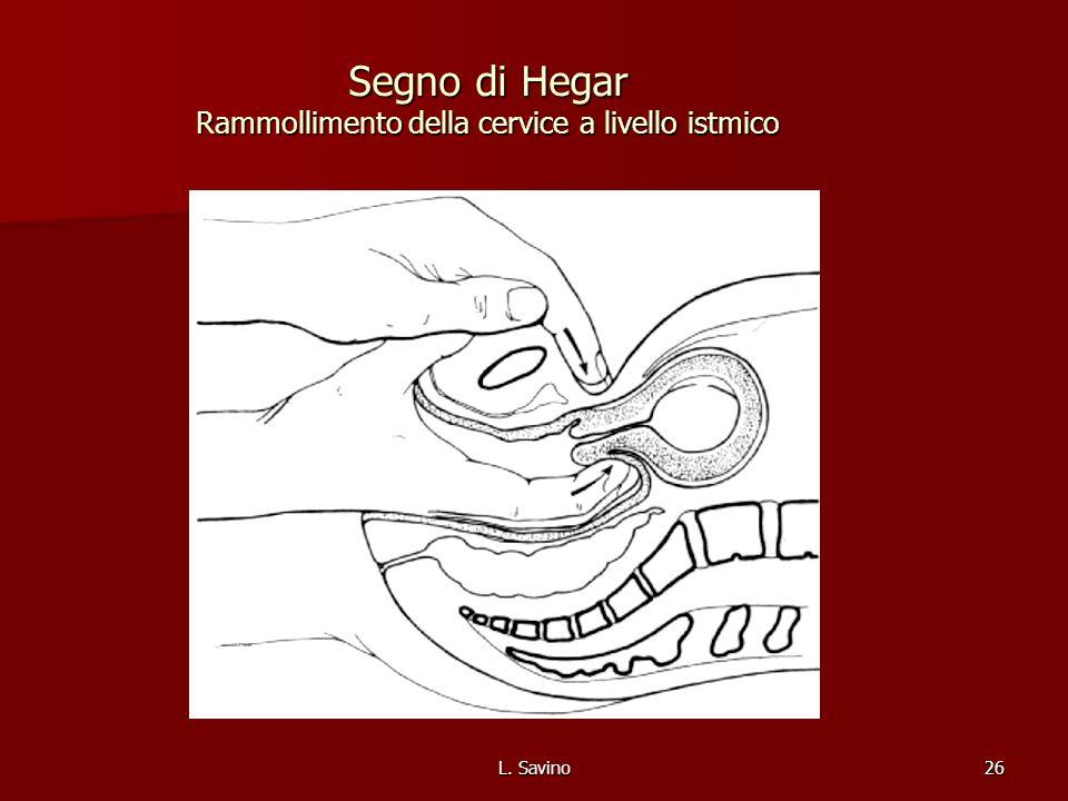 Segno di Hegar Rammollimento della cervice a livello istmico