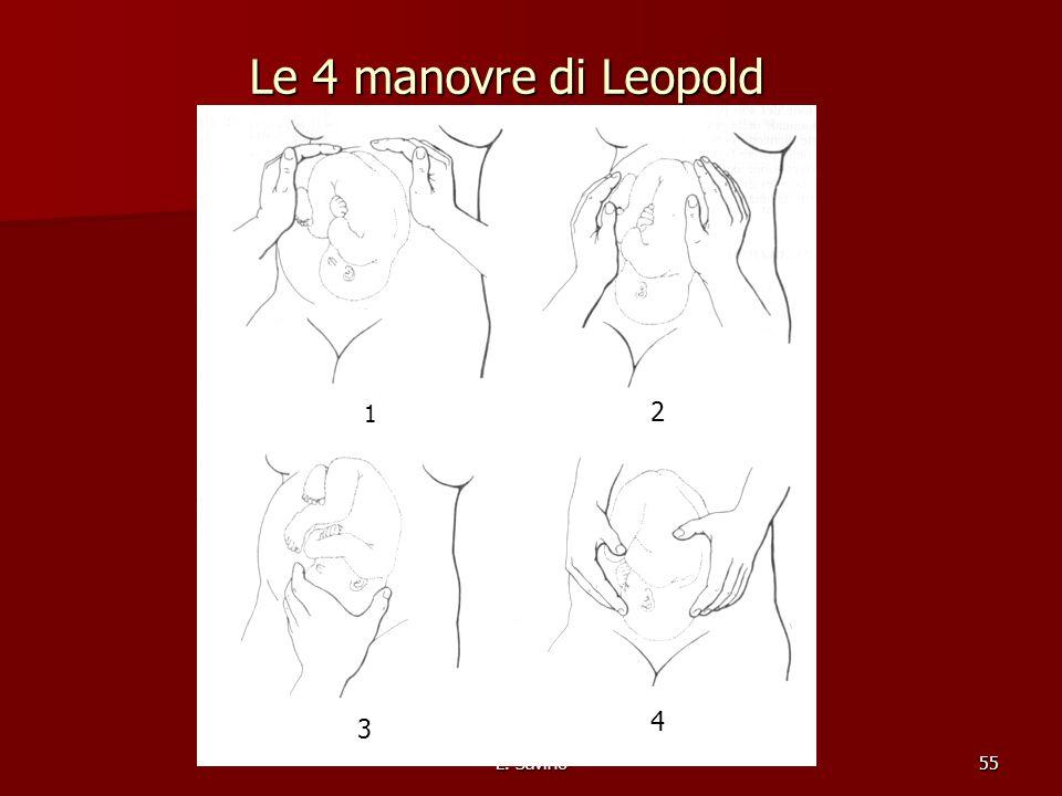 Le 4 manovre di Leopold 1 2 4 3 L. Savino