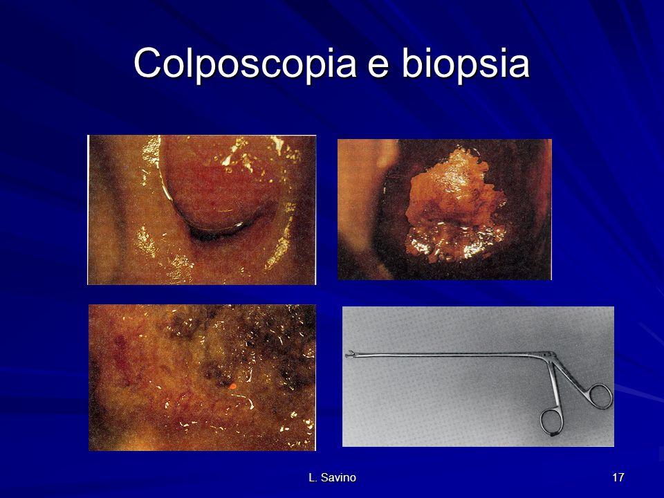 Colposcopia e biopsia L. Savino