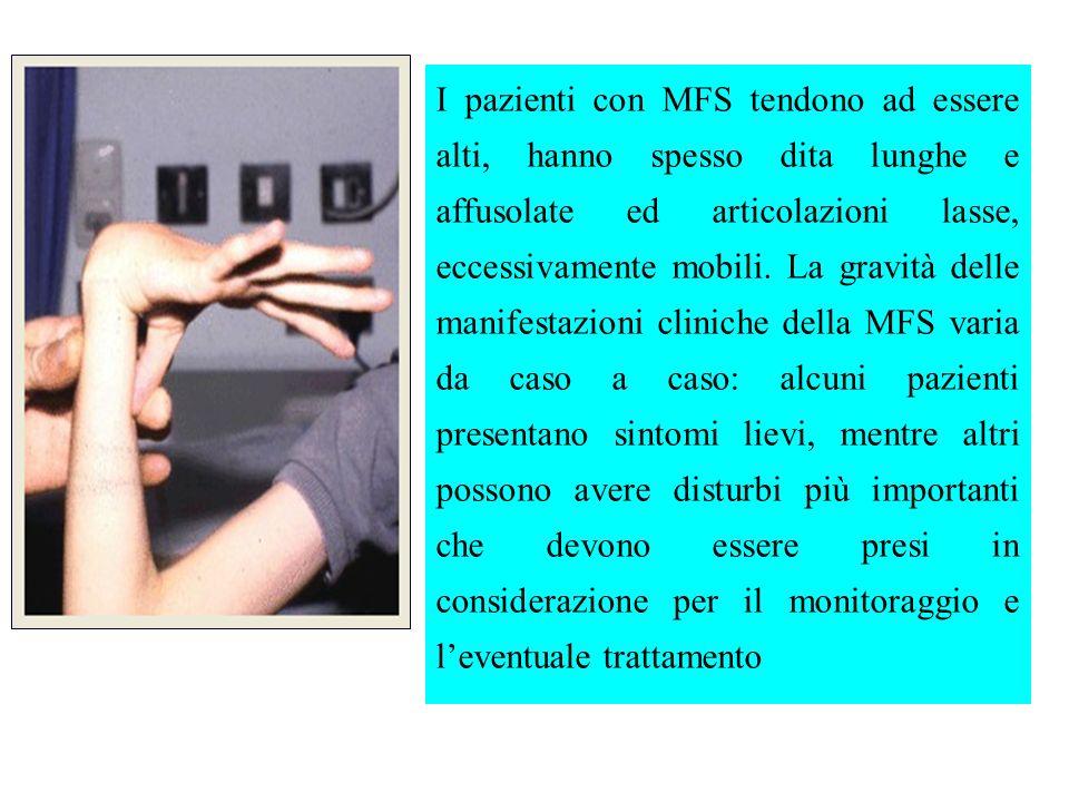 I pazienti con MFS tendono ad essere alti, hanno spesso dita lunghe e affusolate ed articolazioni lasse, eccessivamente mobili.