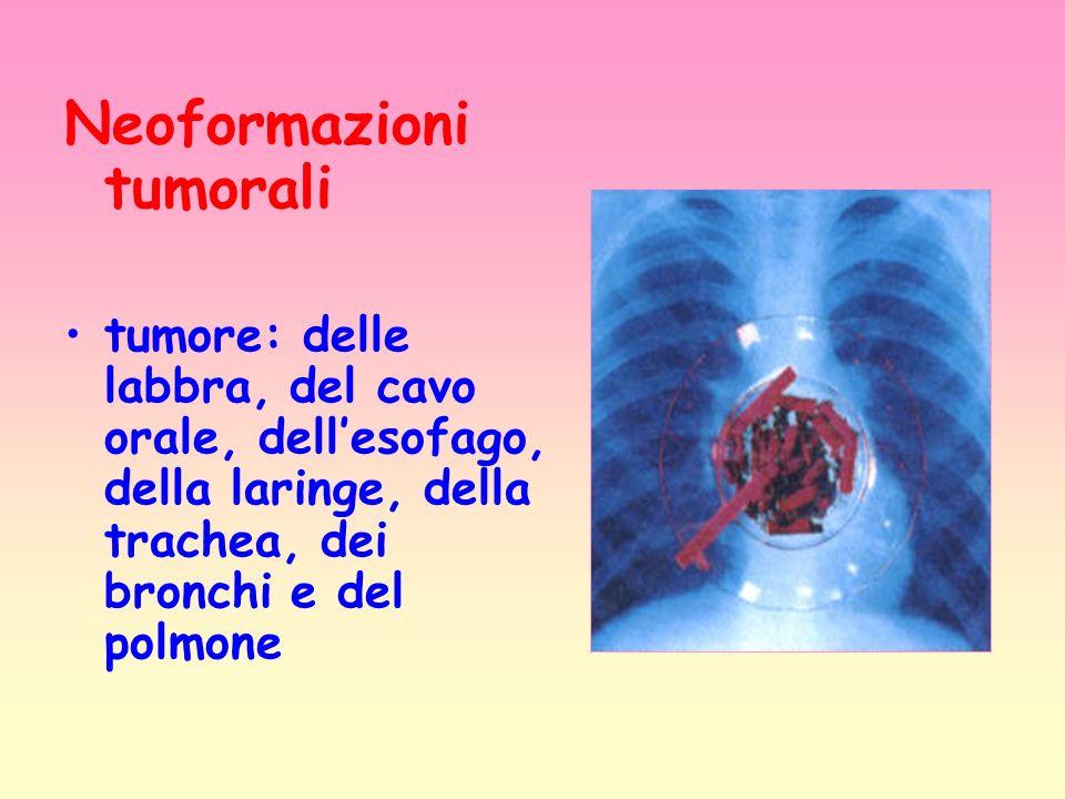 Neoformazioni tumorali