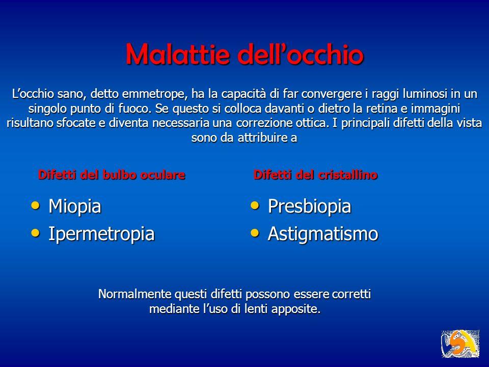 Malattie dell'occhio Miopia Ipermetropia Presbiopia Astigmatismo