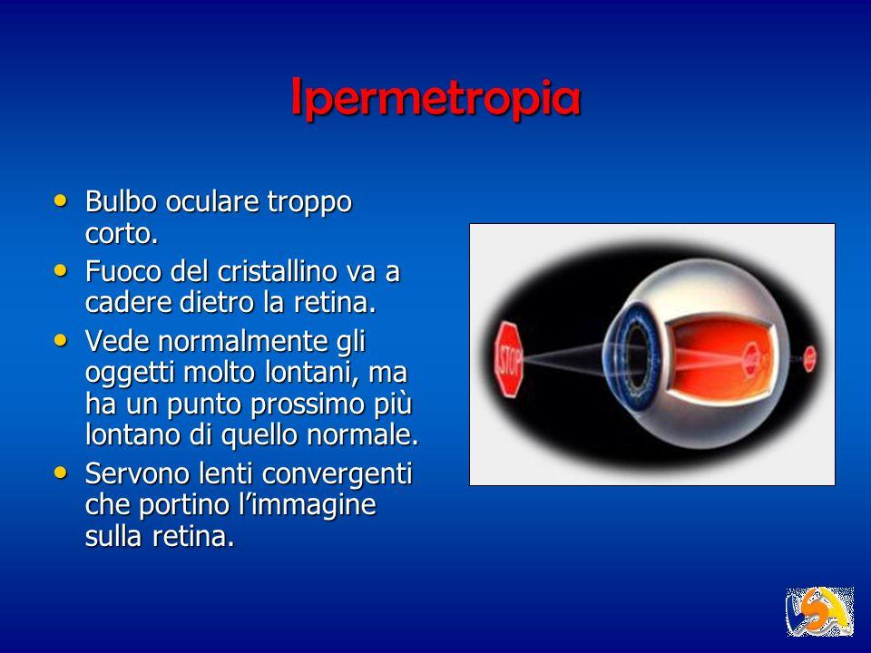 Ipermetropia Bulbo oculare troppo corto.