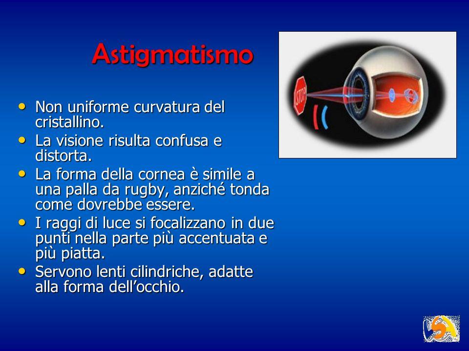 Astigmatismo Non uniforme curvatura del cristallino.
