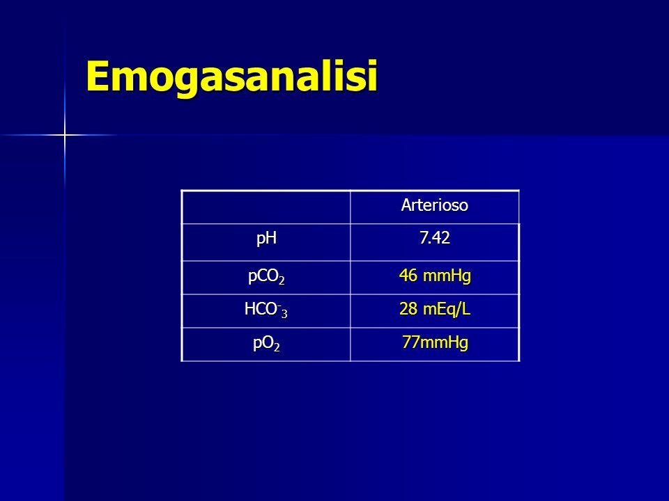 Emogasanalisi Arterioso pH 7.42 pCO2 46 mmHg HCO-3 28 mEq/L pO2 77mmHg