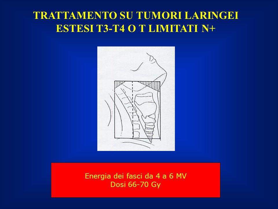 TRATTAMENTO SU TUMORI LARINGEI ESTESI T3-T4 O T LIMITATI N+