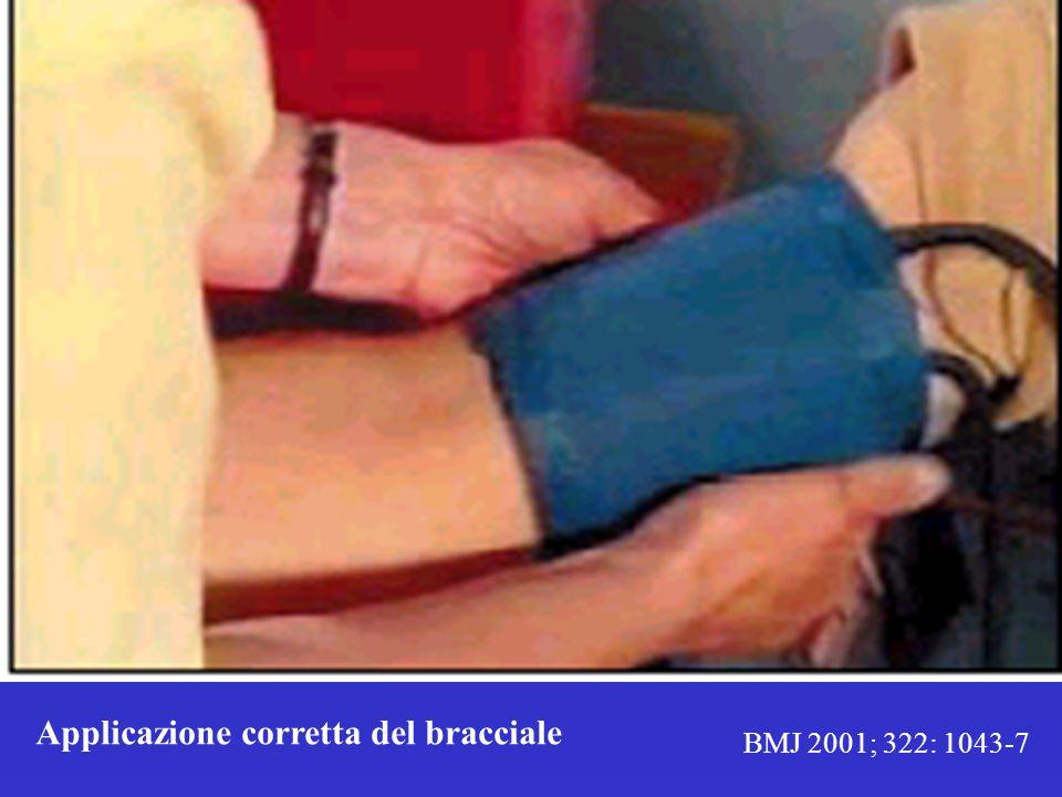 Applicazione corretta del bracciale