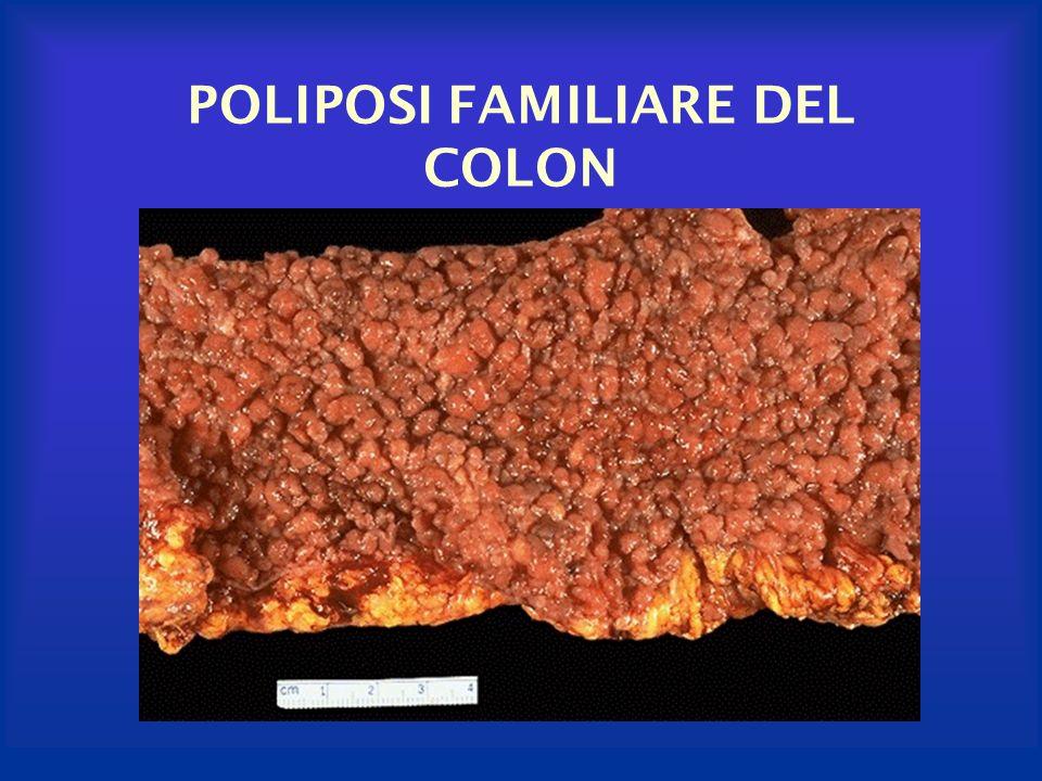 POLIPOSI FAMILIARE DEL COLON