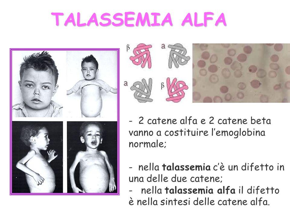 TALASSEMIA ALFA - 2 catene alfa e 2 catene beta vanno a costituire l'emoglobina normale; nella talassemia c'è un difetto in una delle due catene;