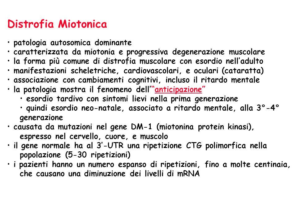Distrofia Miotonica patologia autosomica dominante