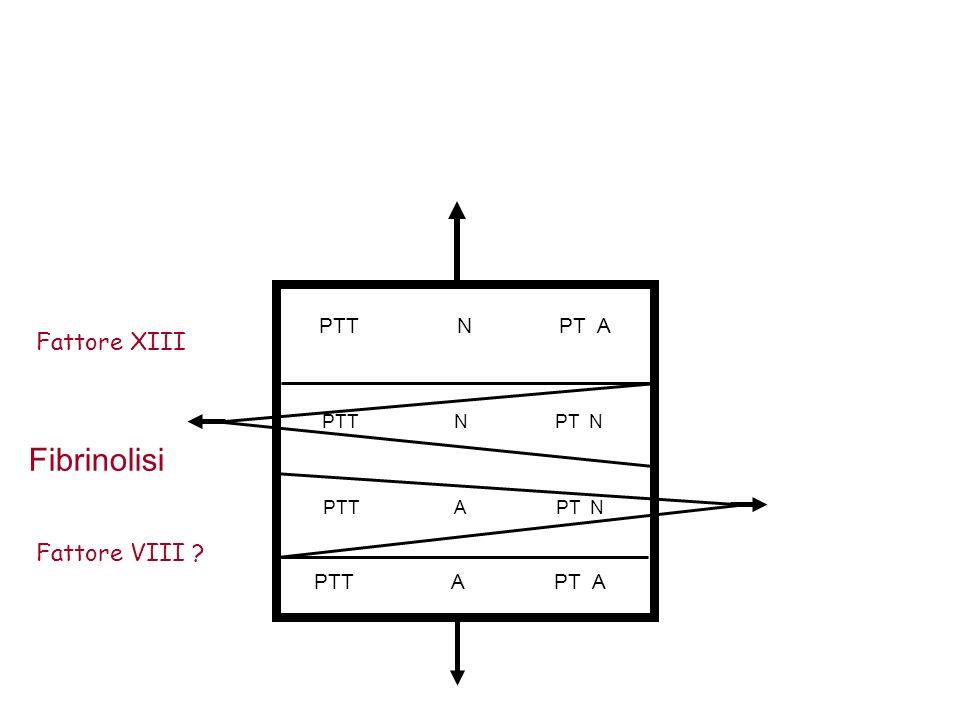 Fibrinolisi Fattore XIII Fattore VIII PTT N PT A PTT A PT A