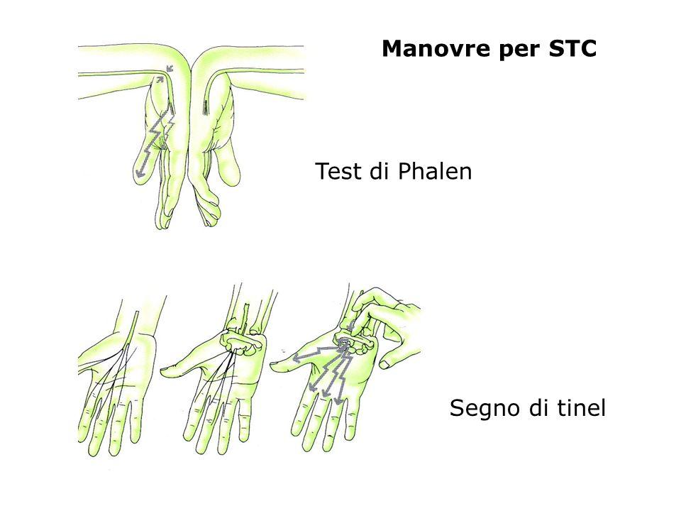 Manovre per STC Test di Phalen Segno di tinel