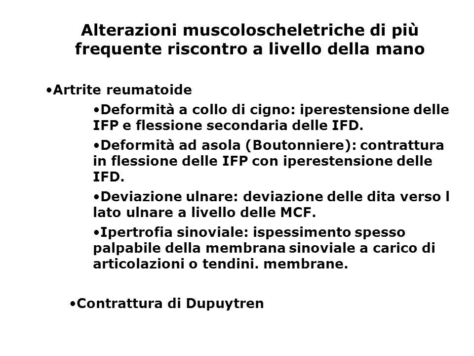 Alterazioni muscoloscheletriche di più frequente riscontro a livello della mano