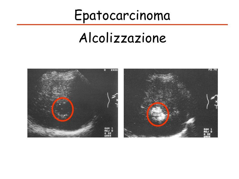 Epatocarcinoma Alcolizzazione