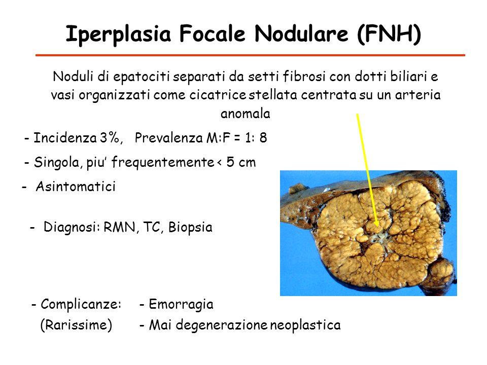 Iperplasia Focale Nodulare (FNH)