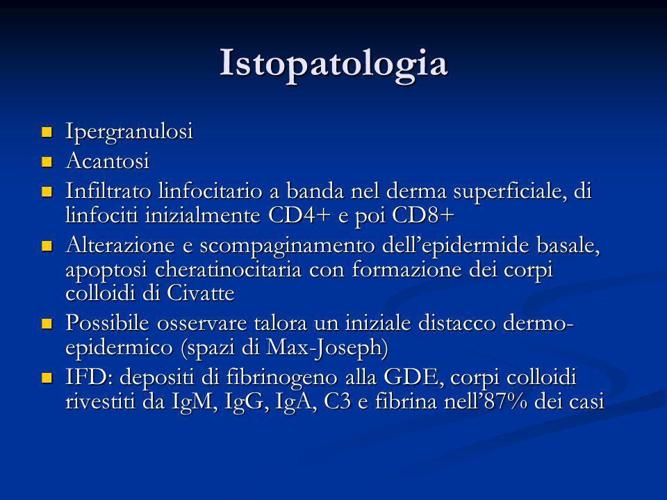 Istopatologia Ipergranulosi Acantosi
