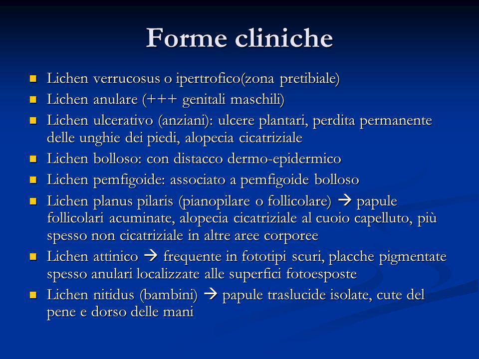 Forme cliniche Lichen verrucosus o ipertrofico(zona pretibiale)