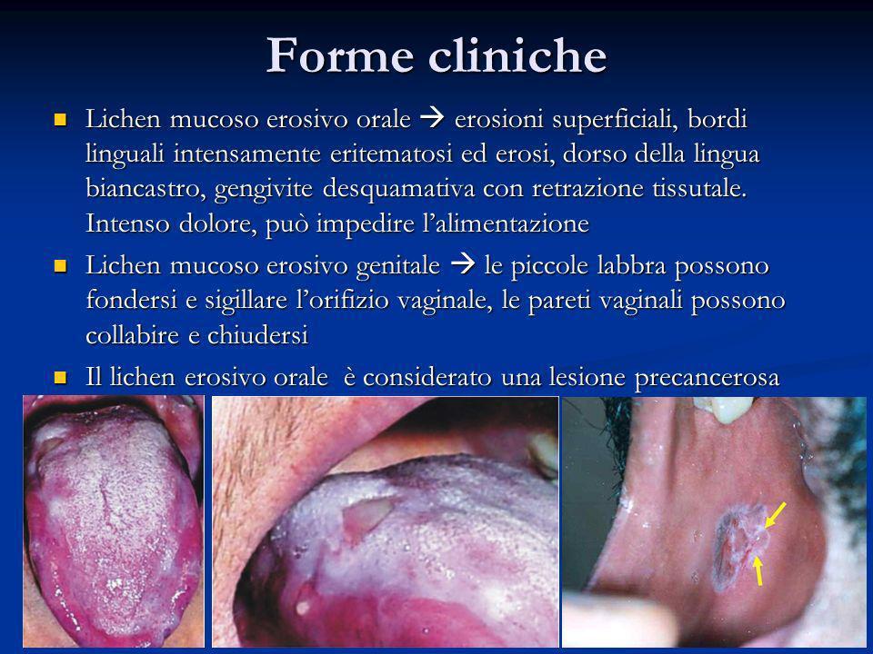 Forme cliniche