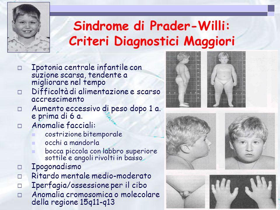Sindrome di Prader-Willi: Criteri Diagnostici Maggiori