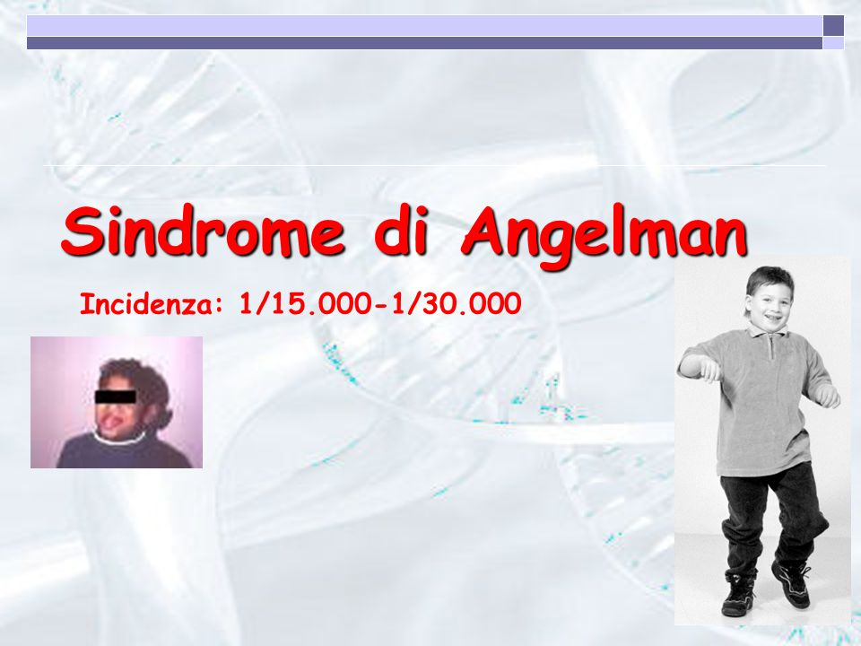 Sindrome di Angelman Incidenza: 1/15.000-1/30.000