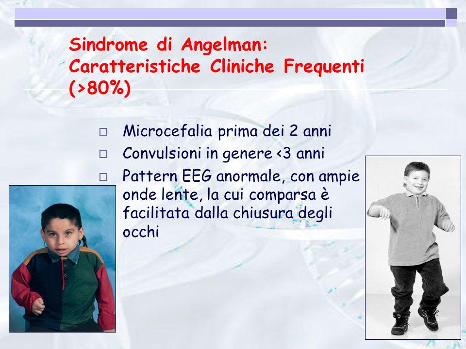 Sindrome di Angelman: Caratteristiche Cliniche Frequenti (>80%)