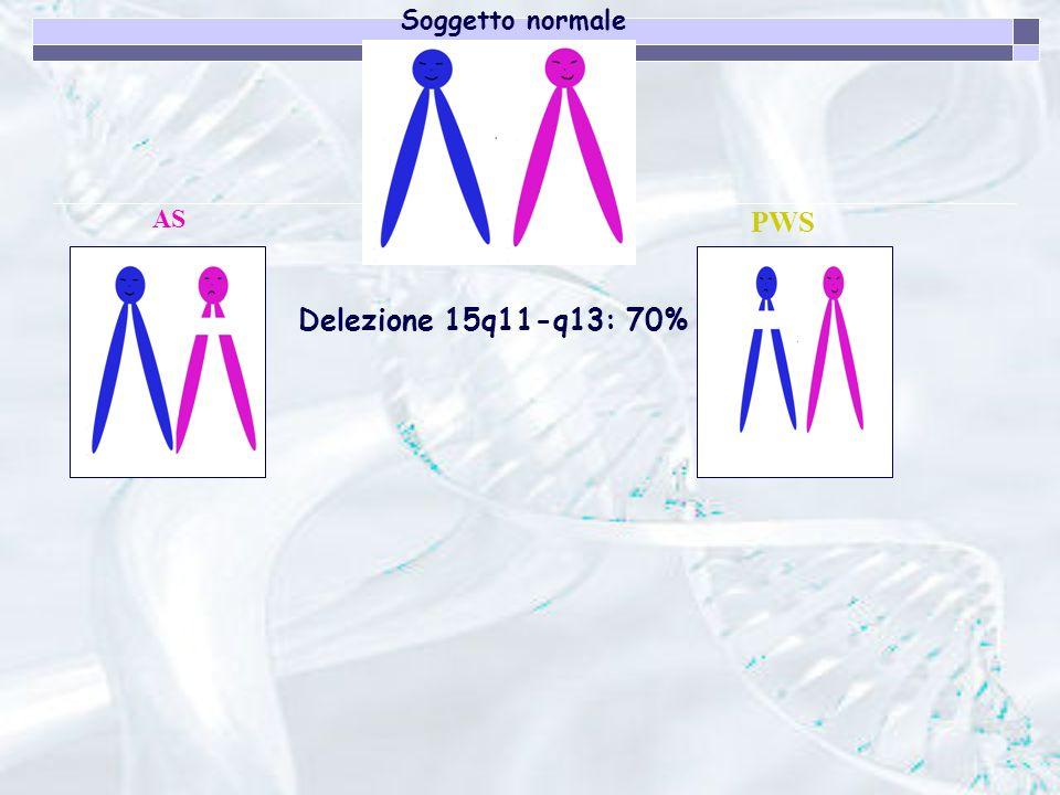 Soggetto normale AS PWS Delezione 15q11-q13: 70%