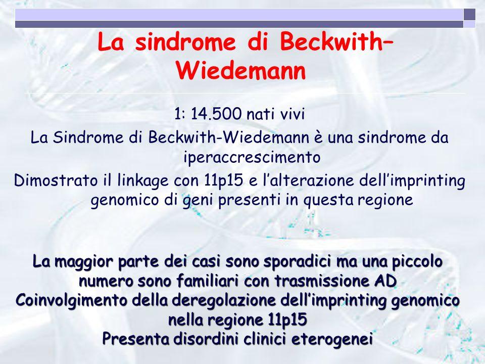 La sindrome di Beckwith–Wiedemann