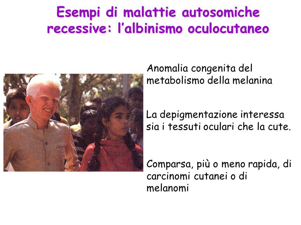 Esempi di malattie autosomiche recessive: l'albinismo oculocutaneo