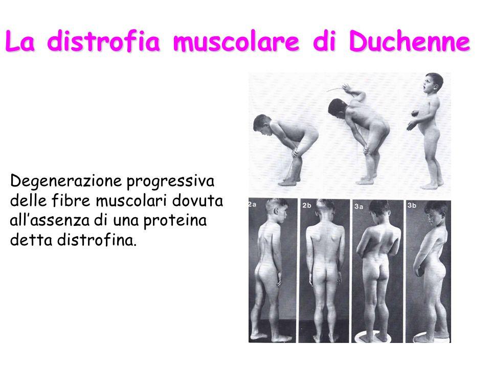 La distrofia muscolare di Duchenne