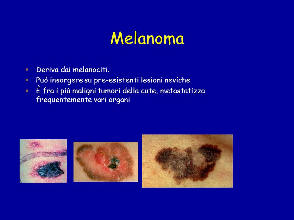 Melanoma Deriva dai melanociti.