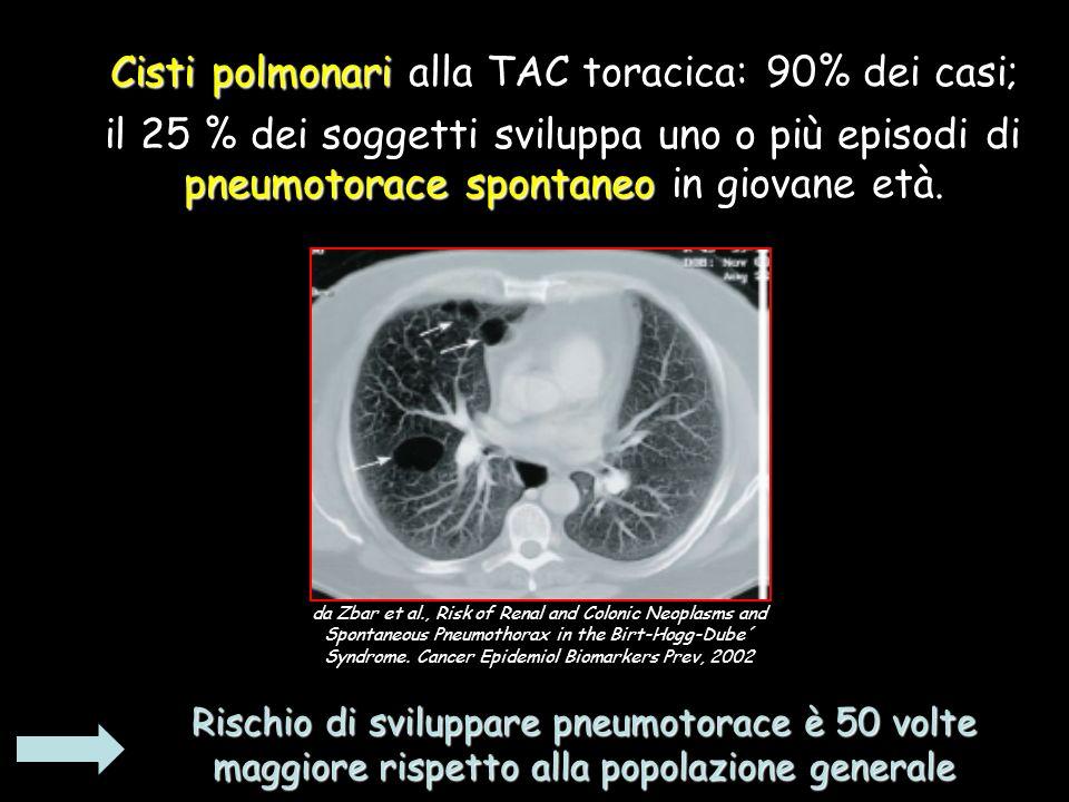 Cisti polmonari alla TAC toracica: 90% dei casi;