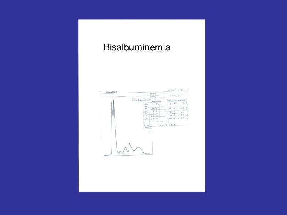 Bisalbuminemia