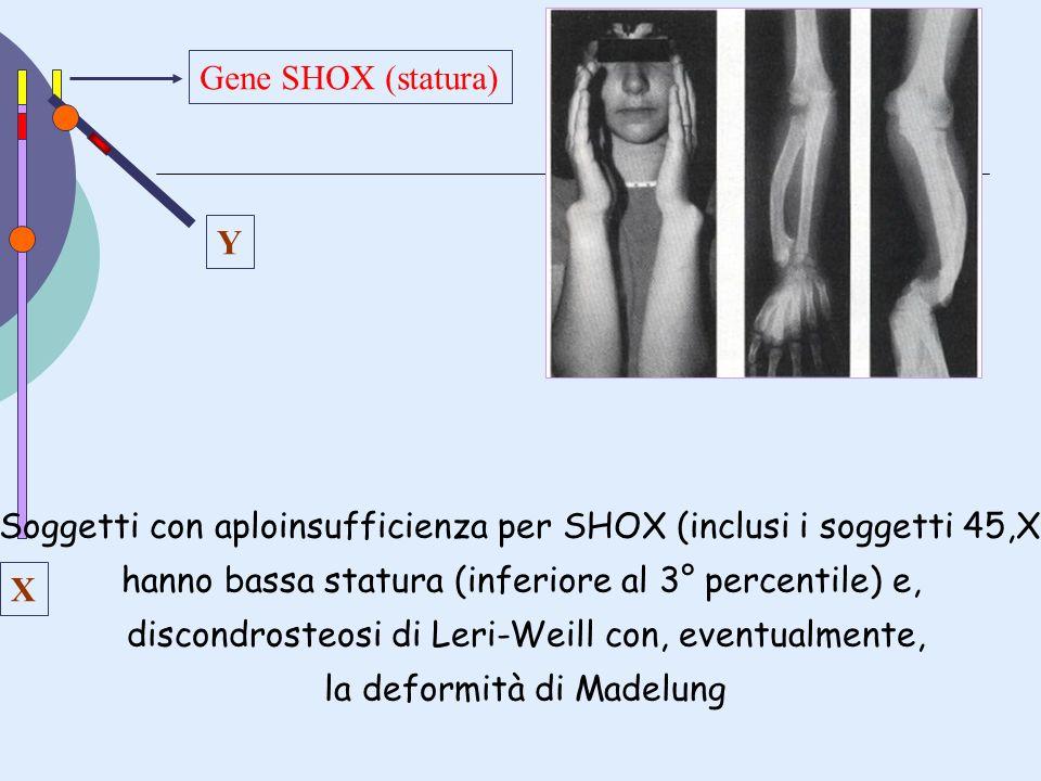 Soggetti con aploinsufficienza per SHOX (inclusi i soggetti 45,X)
