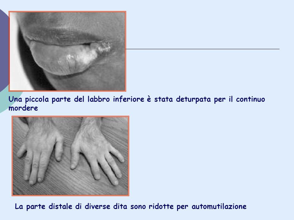 Una piccola parte del labbro inferiore è stata deturpata per il continuo