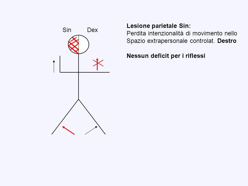Lesione parietale Sin: