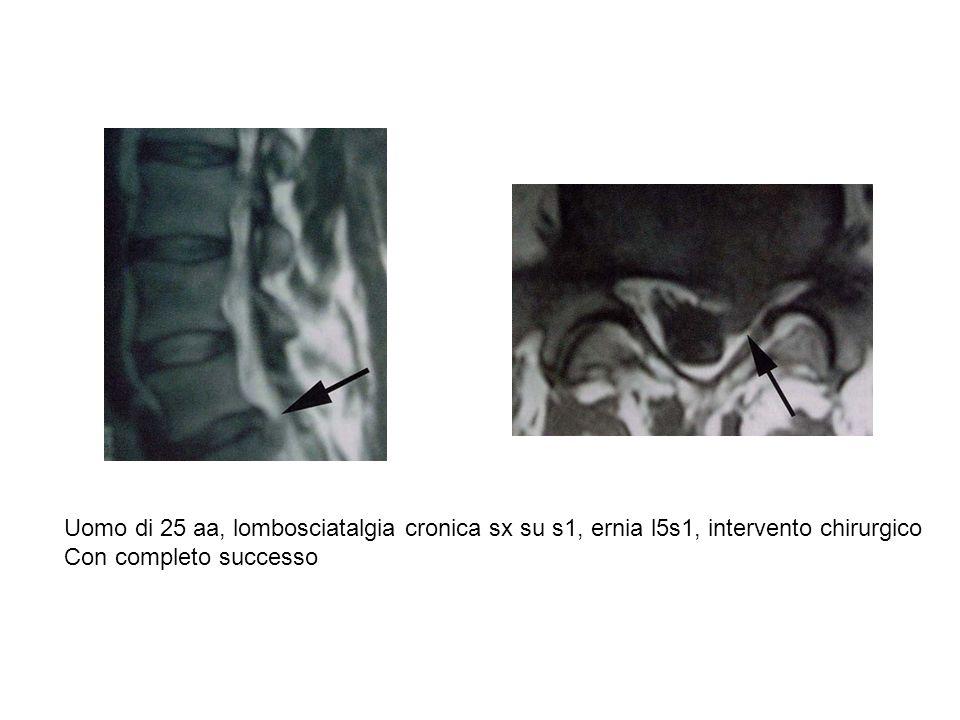 Uomo di 25 aa, lombosciatalgia cronica sx su s1, ernia l5s1, intervento chirurgico