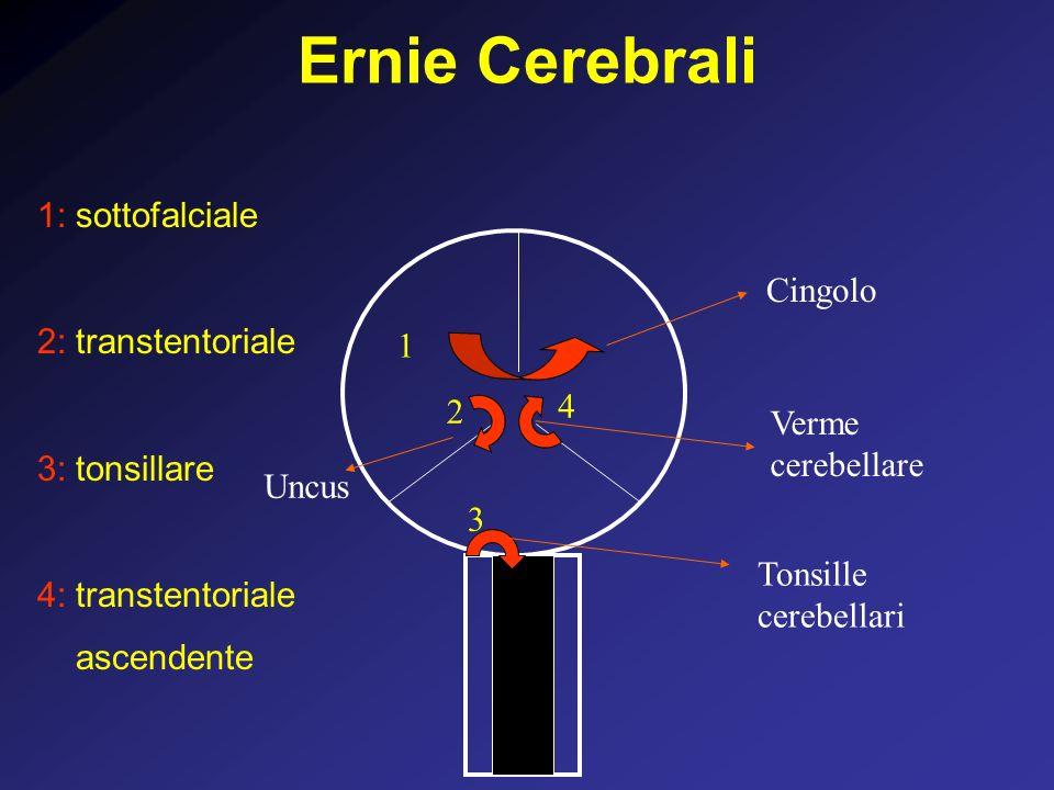 Ernie Cerebrali 1: sottofalciale 2: transtentoriale Cingolo