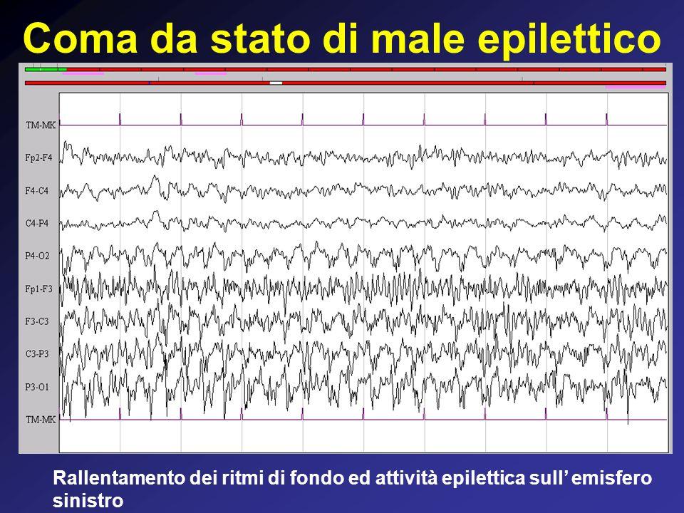 Coma da stato di male epilettico