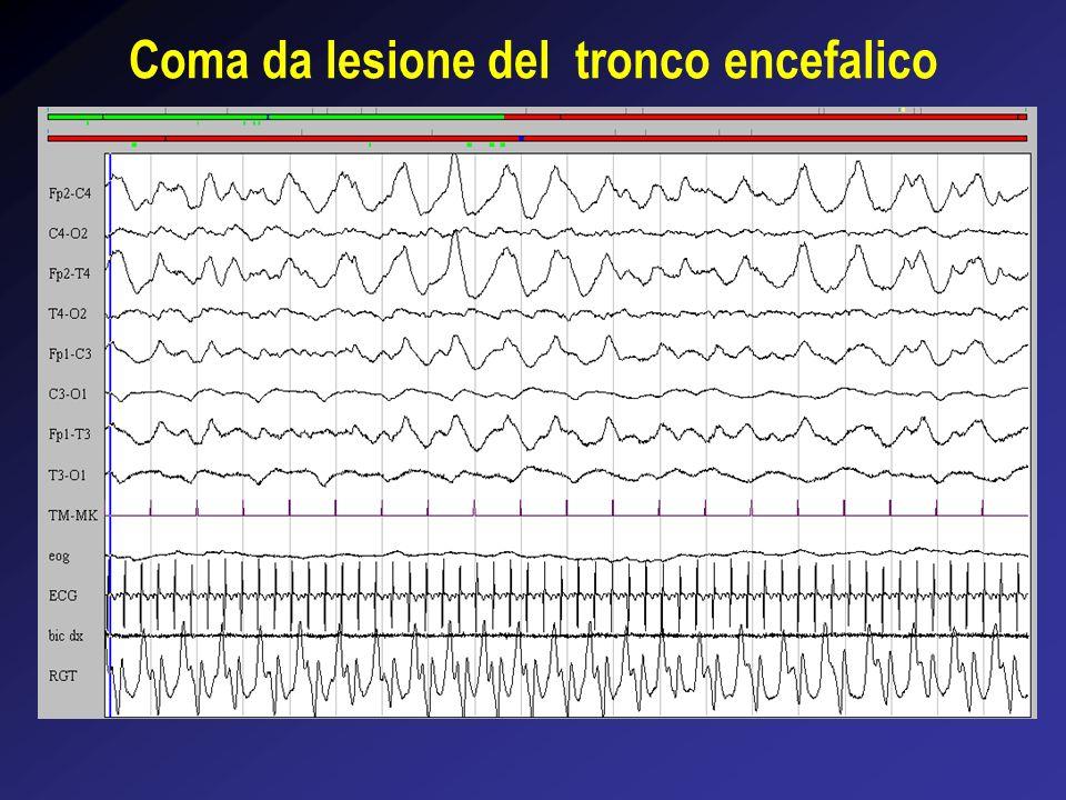 Coma da lesione del tronco encefalico