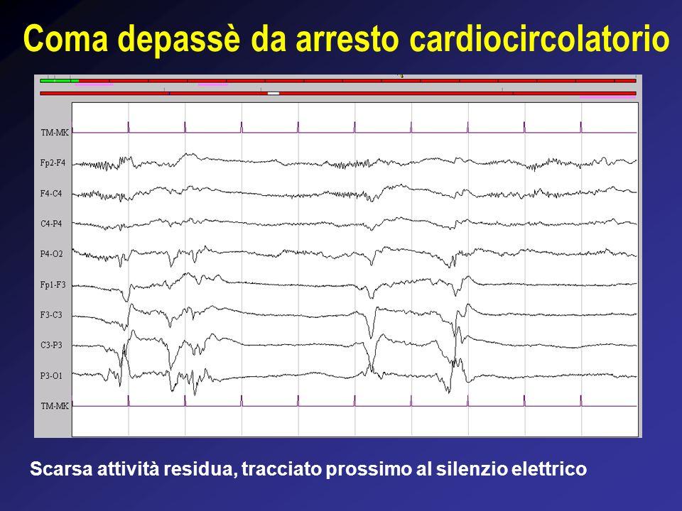 Coma depassè da arresto cardiocircolatorio