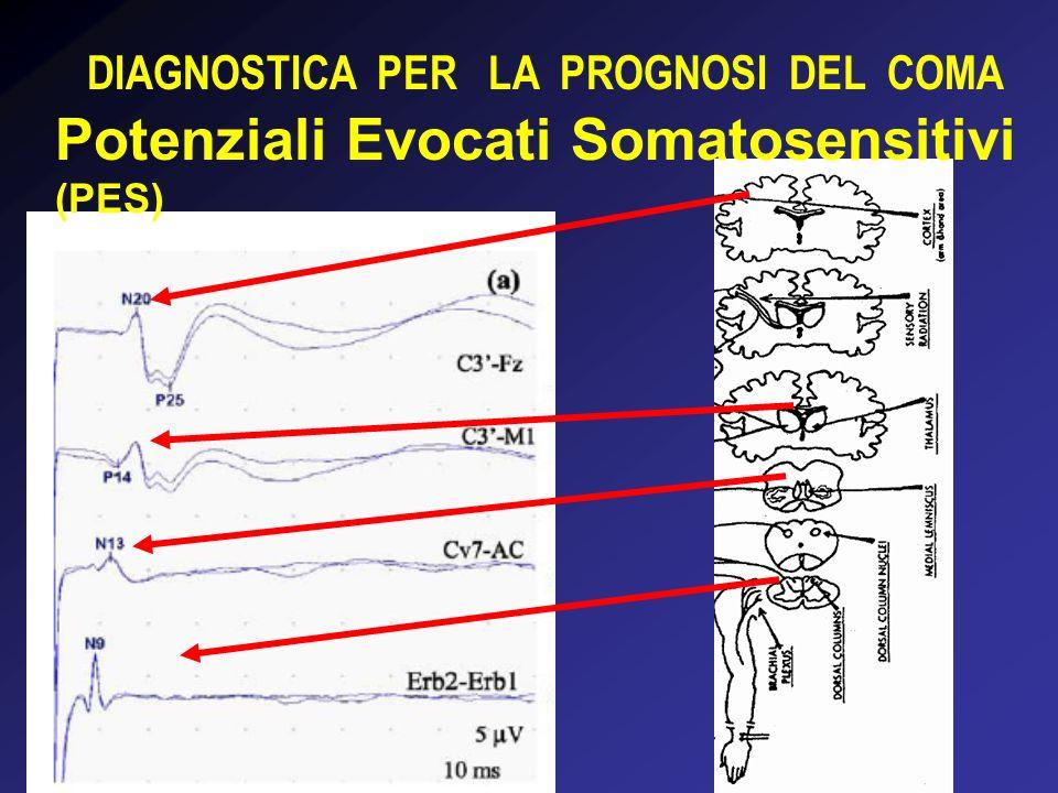 DIAGNOSTICA PER LA PROGNOSI DEL COMA Potenziali Evocati Somatosensitivi (PES)