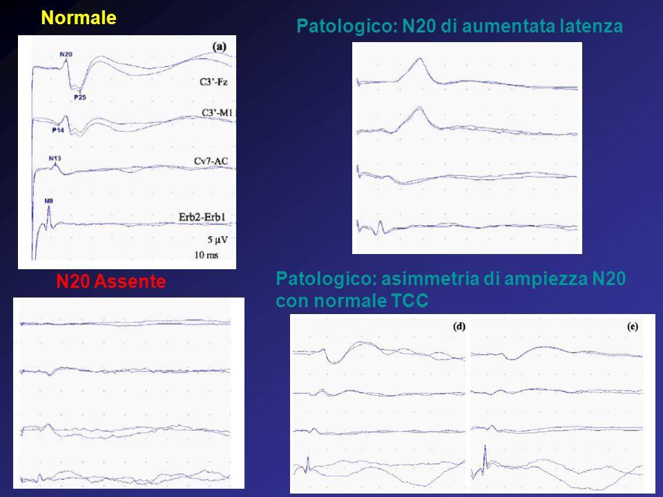 Normale Patologico: N20 di aumentata latenza. N20 Assente.