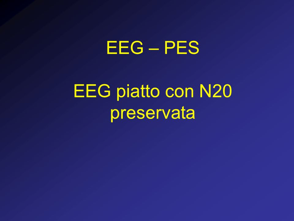 EEG – PES EEG piatto con N20 preservata