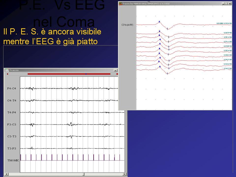 P.E. Vs EEG nel Coma